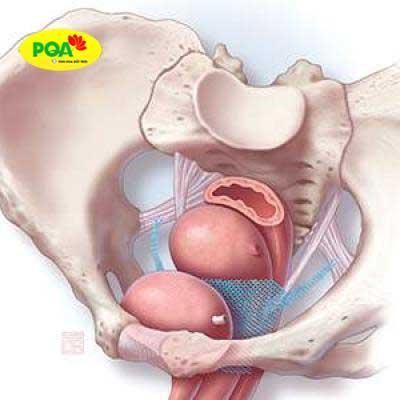 Phẫu thuật treo sa tử cung