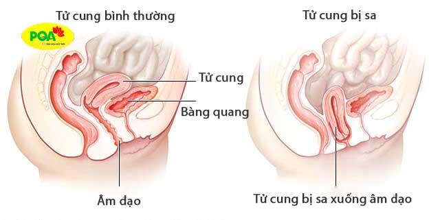 Hình ảnh sa tử cung độ 2